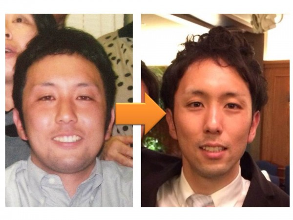 befor and after